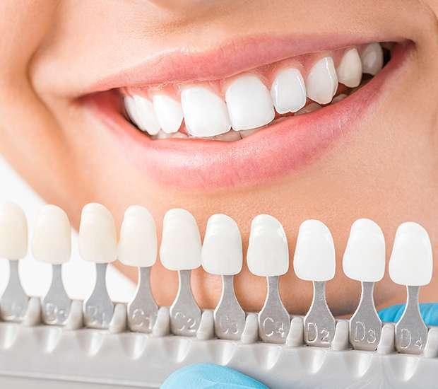 Boca Raton Cosmetic Dentist