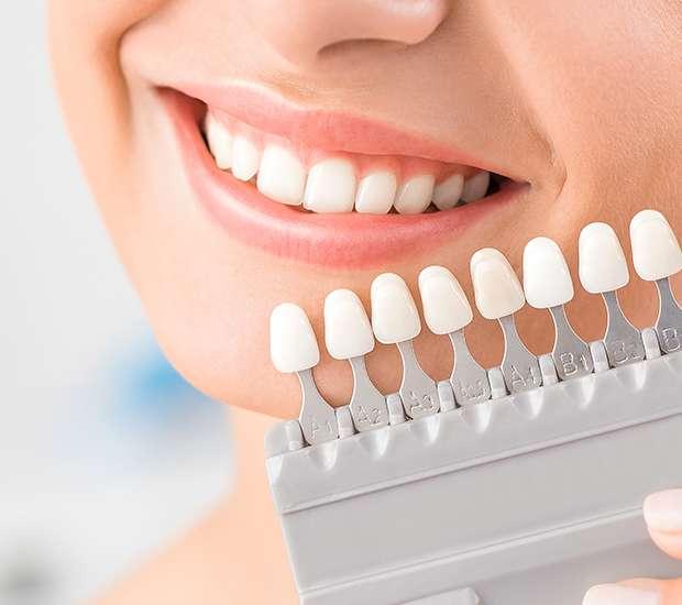 Boca Raton Dental Veneers and Dental Laminates